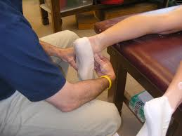 Custom plaster cast orthotic St George UT