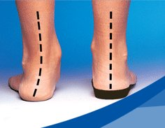 how effective are orthoses for treatment Orthotics (greek: ορθός, translit ortho, lit 'to straighten, to align') is a medical specialty that focuses on the design and application of orthosesan orthosis (plural: orthoses) is an externally applied device used to modify the structural and functional characteristics of the neuromuscular and skeletal system an orthotist is the primary medical clinician responsible for the.