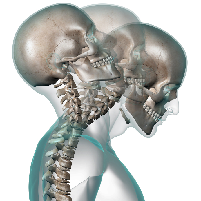 Whiplash pain can be treated by Dr. Andrew White St George UT chiropractor